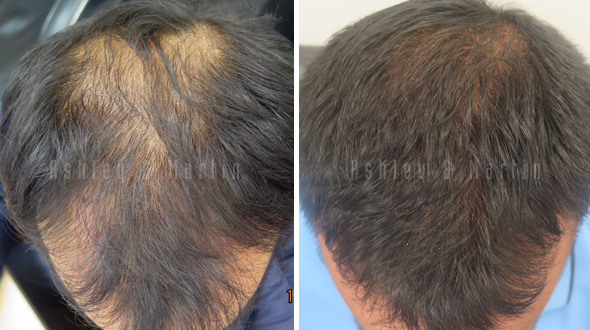 Case Study: Client Taken Aback With How Much Hair He Regains